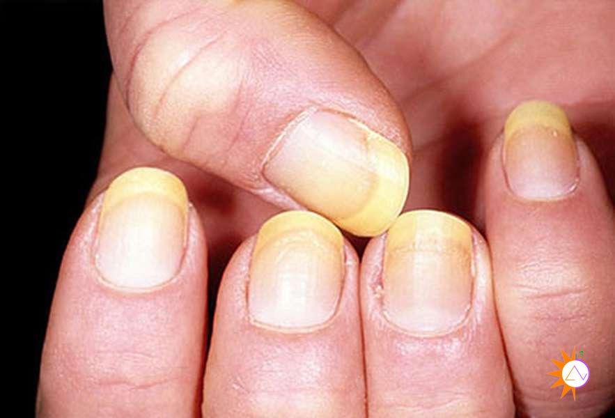 dấu hiệu bệnh nấm móng